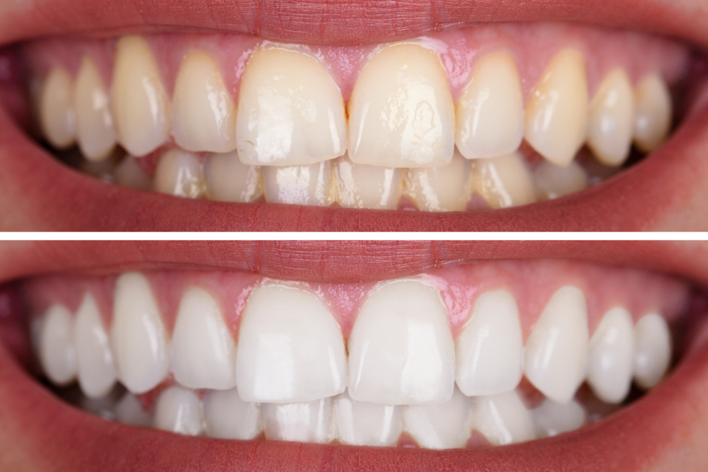 What happens when you get your teeth whitened and how long do the results last?