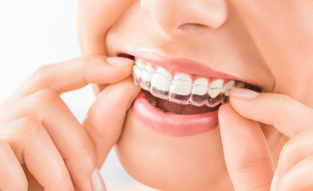 Why Invisalign is better than traditional braces